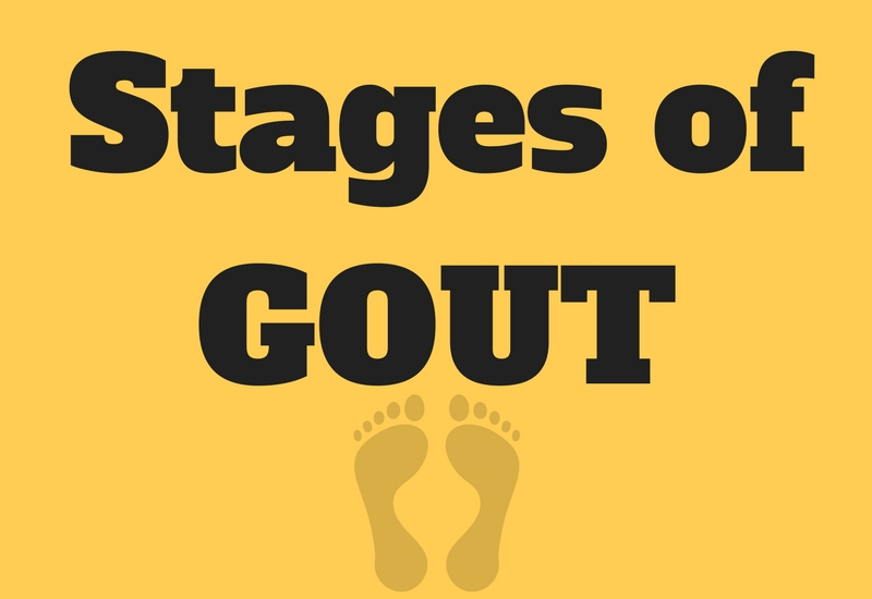 Stages Of Gout And Risk Factors