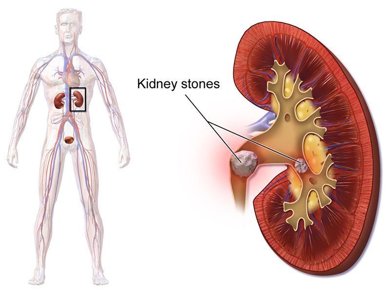 Gout And Kidney Stones (Relations Between Gout And Kidney Stones)