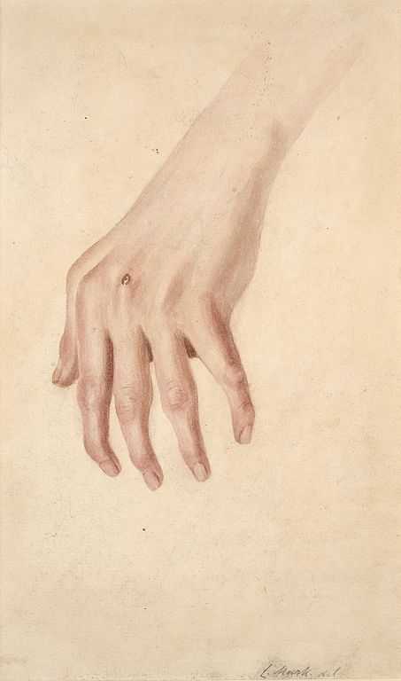 gout and rheumatoid arthritis