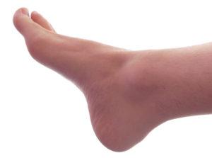 gout symptoms