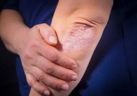 psoriasis and gout