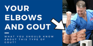 elbows and gout