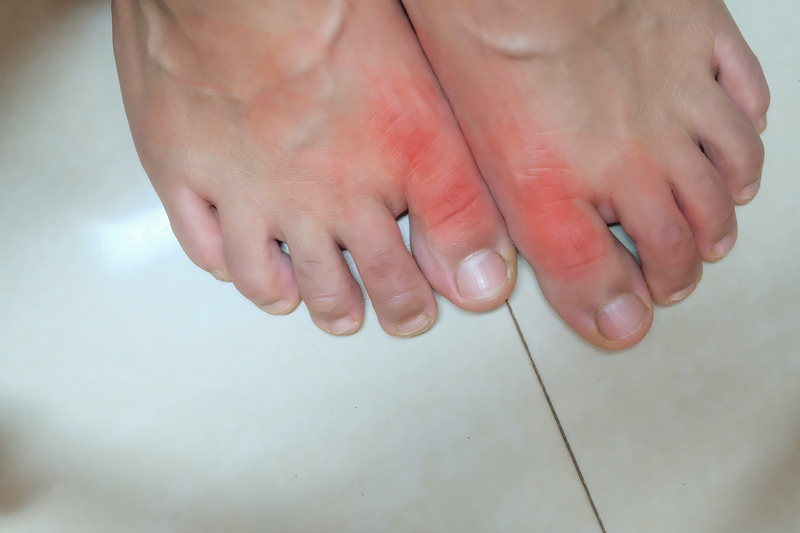Foot of gout patient. Painful and inflamed gout.