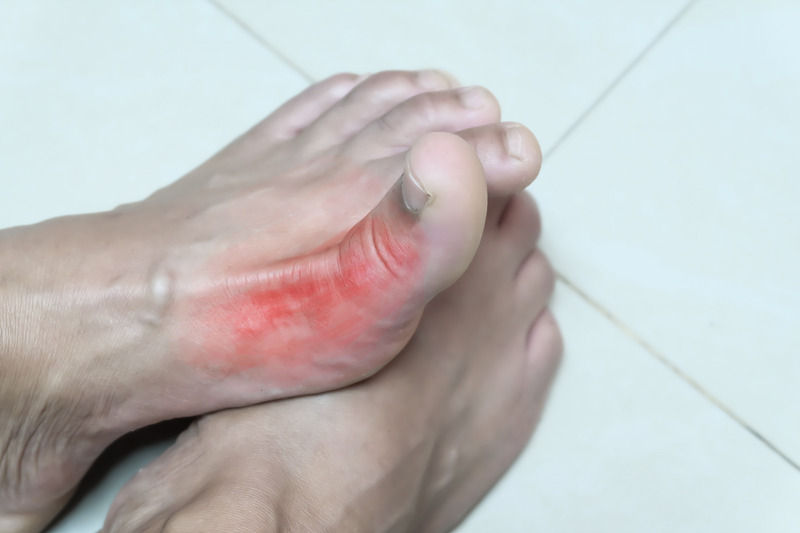 what is gout