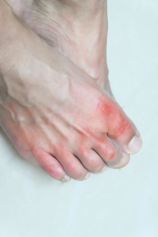stages of gout