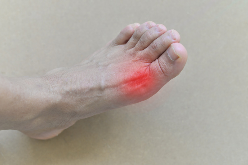 inflamed gout in the foot