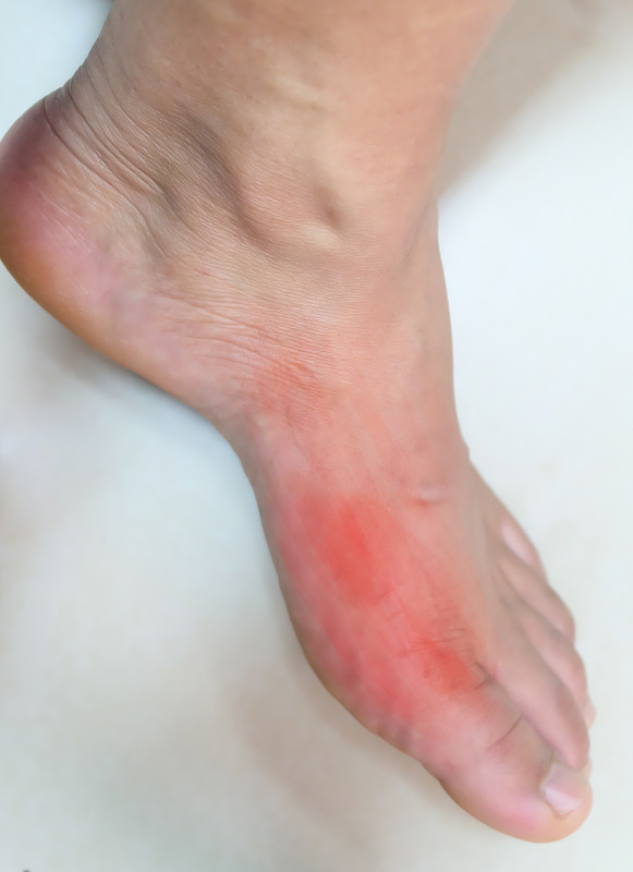 picture of inflamed gout