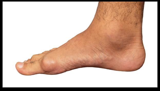 tophi gout