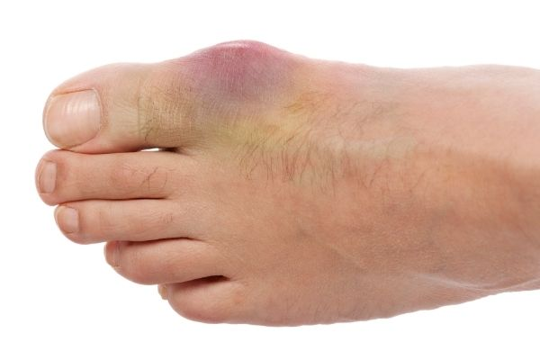 Can Gout Be Cured