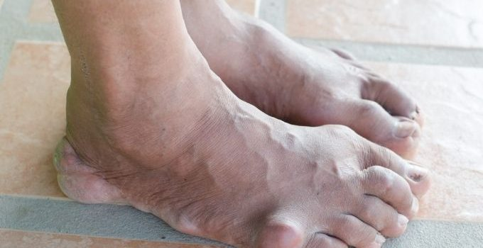 Is gout contagious
