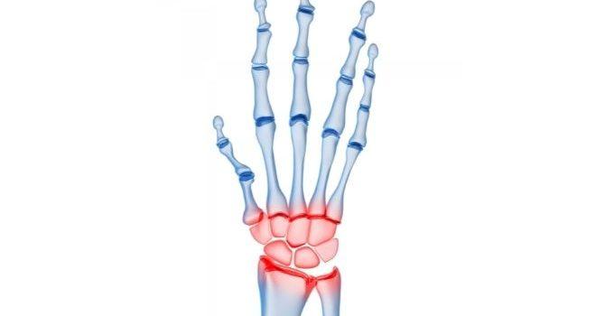 Pisotriquetral Arthritis